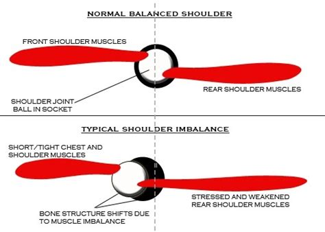 torn rotator cuff bench press bench pressing and shoulder pain philadelphia personal trainers