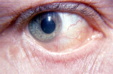 golden retriever pigmentary uveitis treatment uveitis in dogs treatment search results dunia photo