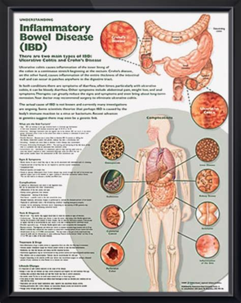 disease dissection the of a surgeon apothecary 1750 1850 books understanding inflammatory bowel disease anatomy poster
