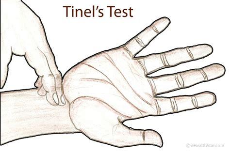 test tunnel carpale tinel s test sign description ehealthstar