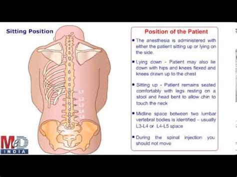 health animation spinal or epidural anesthesia