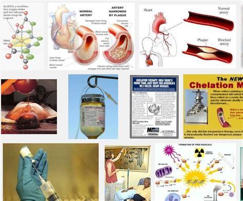 Barium Poisoning Detox by 92 Best Chelation Of Heavy Chemicals In