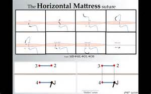 how to create a horizontal mattress suture by