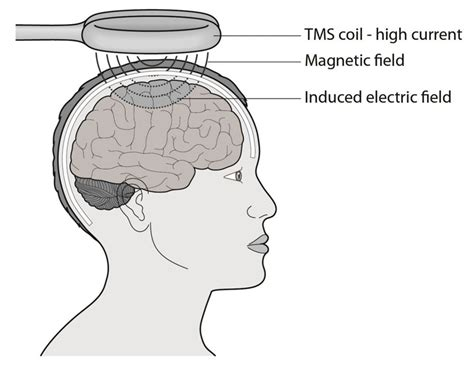 transcranial magnetic stimulation clinical applications for psychiatric practice books what are novel neurotechnologies nuffield bioethics