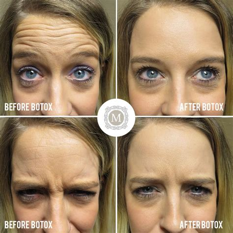 wrinkly forehead hair the 25 best botox for headaches ideas on pinterest