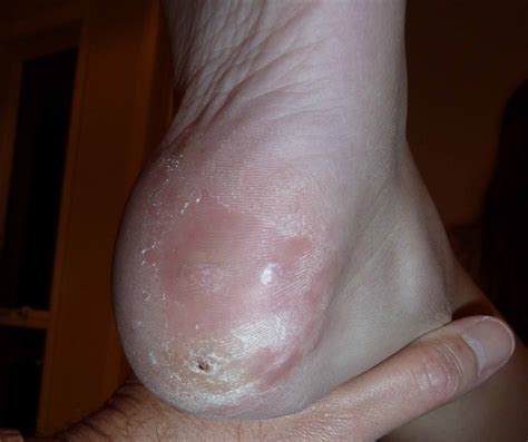 What Causes A Planters Wart by Plantar Warts Pictures Posters News And On Your