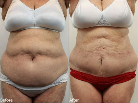 when can you have a tummy tuck after c section tummy tuck surgery dr darm plastic surgery center