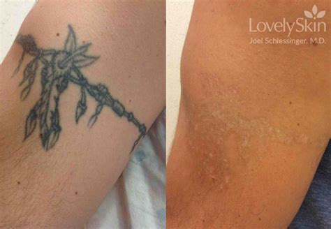 tattoo removal black skin before after omaha cosmetic surgery removal skin specialists pc