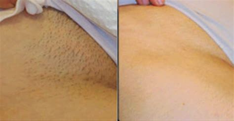 brazilian pubic hair removal after jbhomemade natural and organic beauty and skin care how