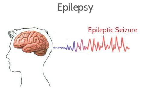 seizure symptoms epilepsy treatment in nellore neurology specialist in nellore brain specialist in