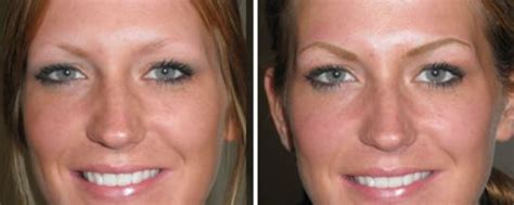 eyebrow tattoo removal cost eyebrow aftercare cost removal makeup