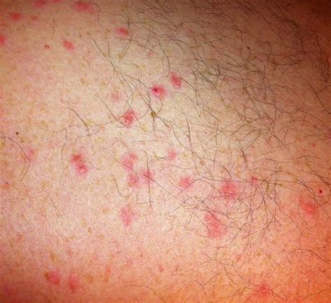 Pin Scabies Bug On Pinterest
