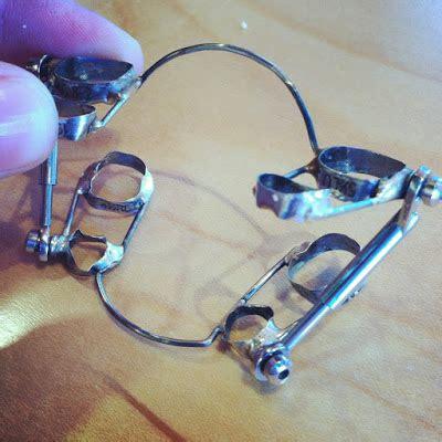 gestell zahnspange zahnspange herbstscharnier oder headgear au 223 enbogen