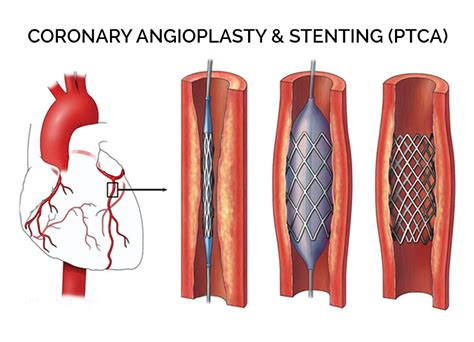 coronary angioplasty with or without stent implantation cardiovascular and vascular surgery in italy
