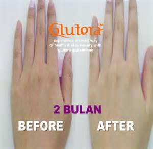 Glutera Suplemen suplemen pemutih kulit glutera indonesia glutera