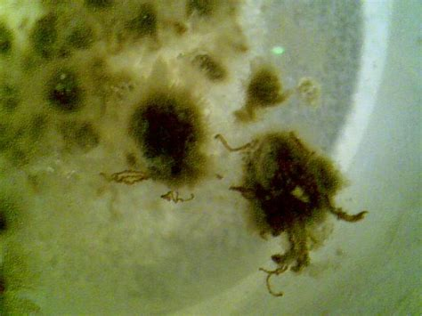 Thick White Mucus In Stool by Re Are Thes Parasites Worms Mucus Parasites Support