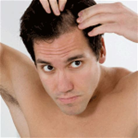 back of head asymettrical hair line cuts uneven hair growth 4 months after hair transplant surgery