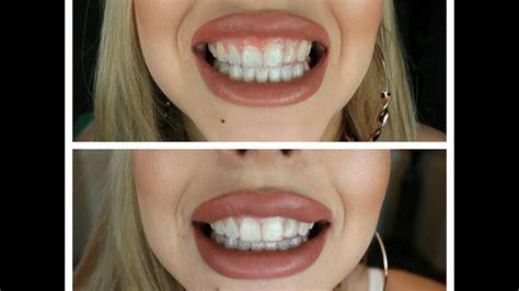 black charcoal  whiten teeth    work