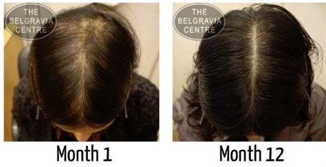 haircuts for female pattern baldness 5 reasons why women lose their hair