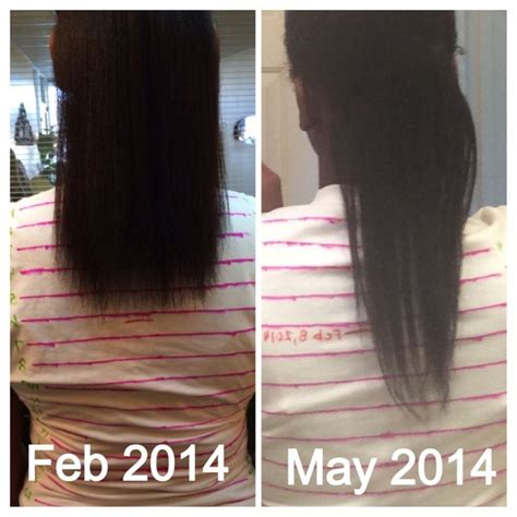 is hair infinity f d a approved hairfinity before and after hairfinity hairfinity