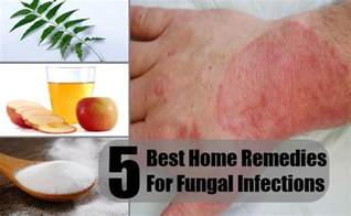 home remedies for infection how to get rid of chest acne scars overnight naturally