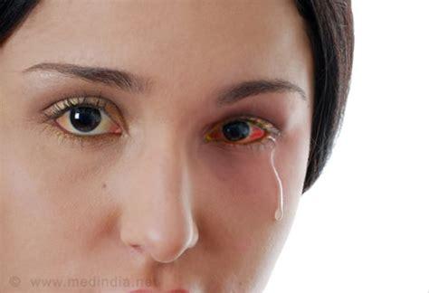 eye allergies eye allergies slideshow