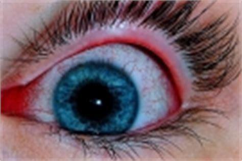 bruciore all interno della lacrimazione degli occhi eccessiva e continua cause e rimedi