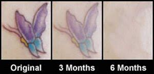 tattoo removal cream that really works plastic surgery with the stars