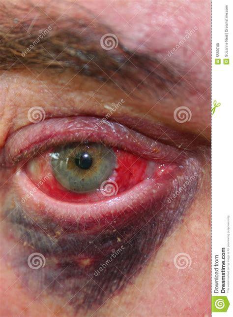imagenes ojos morados globo del ojo y ojo morado enrojecidos foto de archivo
