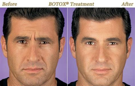 forehead hair removal for men men botox laser hair removal skin care minneapolis mn