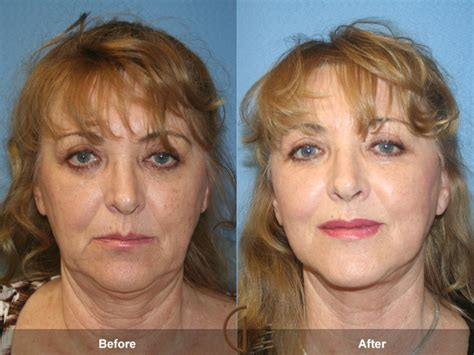 photo gallery before and after cosmetic surgeon in the before after fat grafting to face 16 facial surgeon
