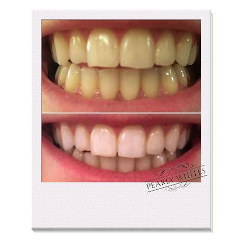 pearly whites professional teeth whitening kit