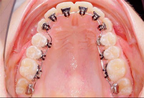 apparecchio interno fisso ortodonzia linguale con o senza attacchi