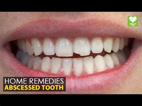Abscessed Tooth Home Remedy by Abscessed Tooth Home Remedies Health Tips Education