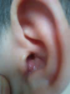 gros bouton dans mon oreille douleur forum sant 233