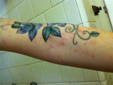 tattoo ink spreading under skin net itchy rash around new 10215428