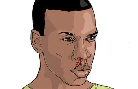 mal di testa sangue dal naso ebola tutti i sintomi foto stetoscopio rivista