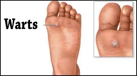 how to fix hammer toes without surgery