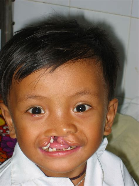 cleft palate cleft palate images
