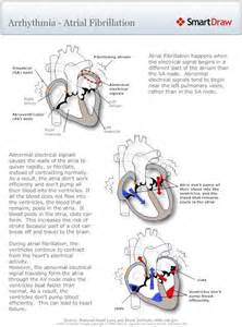 atrial fibrillation diagram 17 best images about nursing pathophysiology