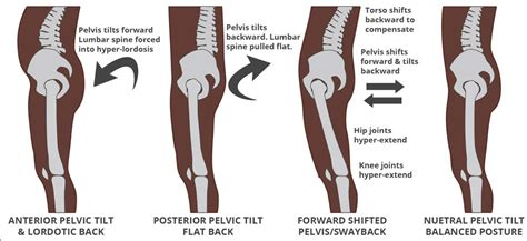 tight hamstrings   pain physiotherapy professionals parramatta