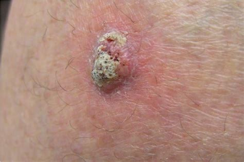 Squamous Cell Carcinoma Research Paper by Type Of Cell Squamous Cell Carcinoma Treatment Ijms Free