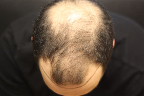 hair transplant problems 19 year old wants a hair transplant but there are problems