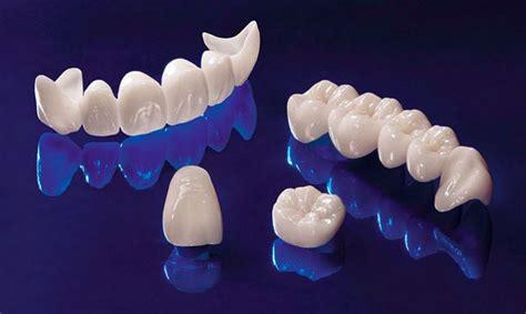 protesi dentaria fissa mobile o removibile quale scegliere