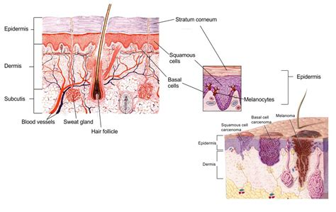 cross section of the skin suntans cornflakes coco chanel skin cancer eo smith
