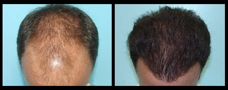 hair restoration hair transplant neograft orlando neograft ta the heart of confidence