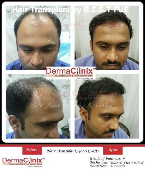 the very best body hair transplant in delhi hair transplant surgery prp results before and after photos
