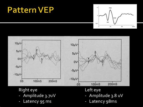 pattern erg standard electrophysiological assessment of optic neuritis is