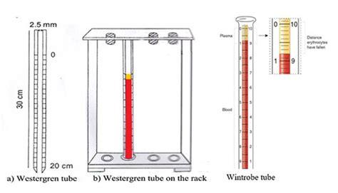 Low Sed Rate by Erythrocyte Sedimentation Rate Esr Principle Method