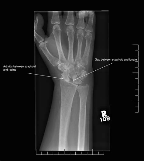oxford textbook of and orthopaedics image gallery scaphoid arthritis